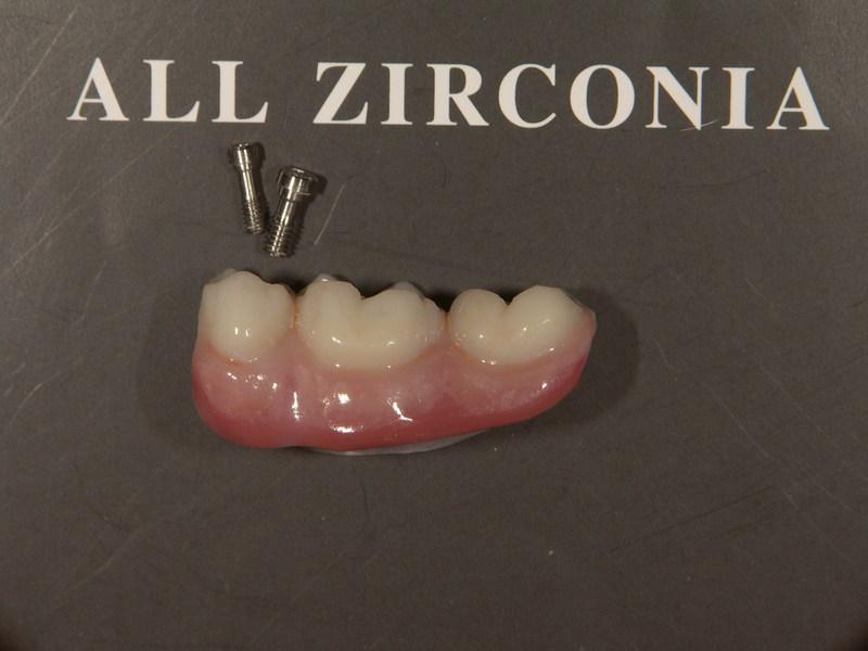 完成物- 歯冠 ステイン法、    歯肉 築盛法