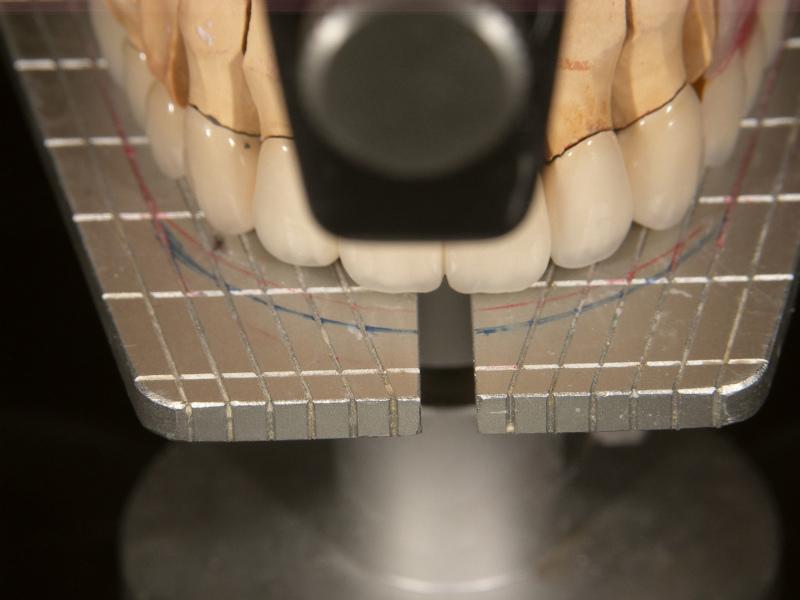 SHILLA  SYSTEM 咬合平面、 左右対称性の確認