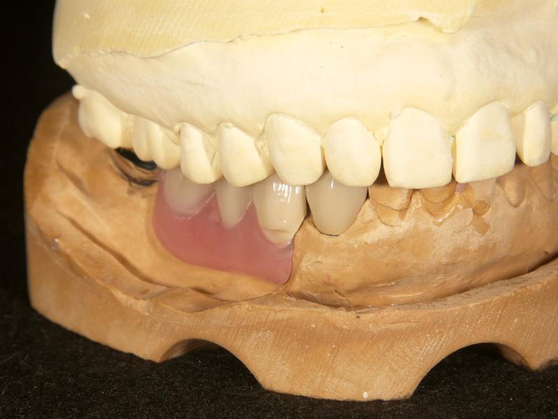 4⏋歯頸部に義歯着脱用の楔状欠損を付与