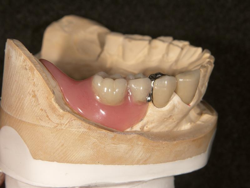 5⏋近心歯頸部に義歯着脱用のノブ(金属)を付与