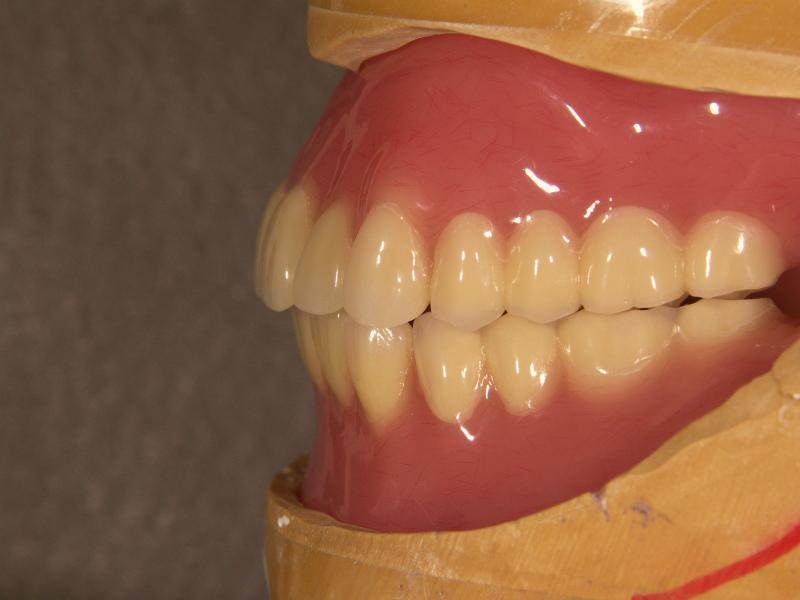 陥凹させた下顎唇側義歯床研磨面