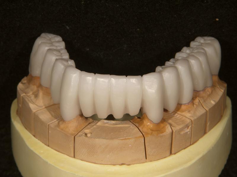 分割模型での1歯ごとの適合チェック、調整
