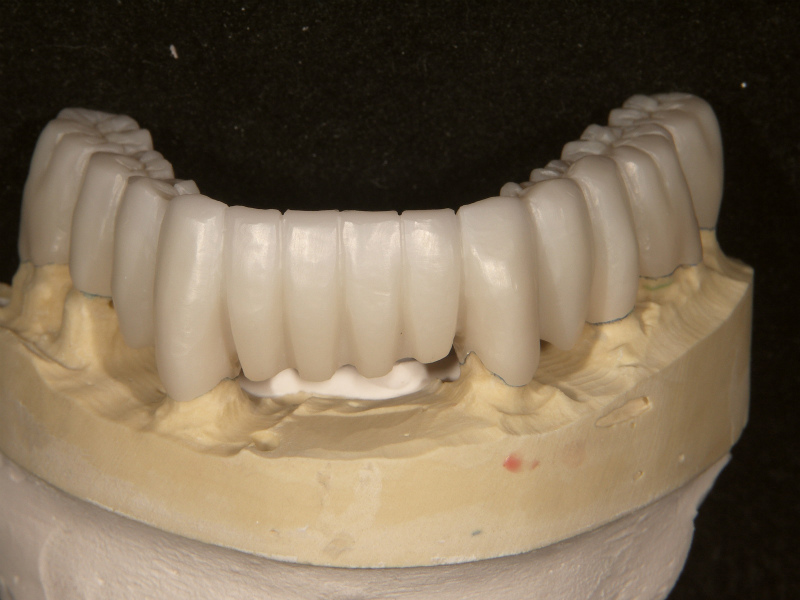本模型での適合チェック、調整 唇側面観