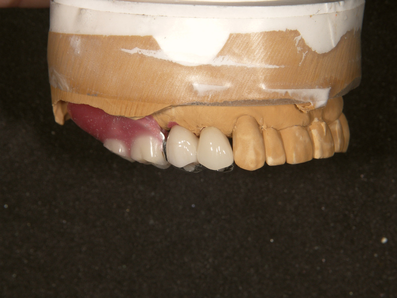 人工歯排列 頬側面観