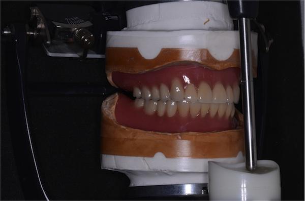 上下完成義歯