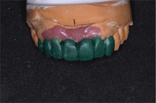 歯冠 回復