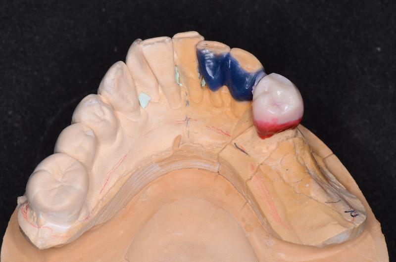 wax up