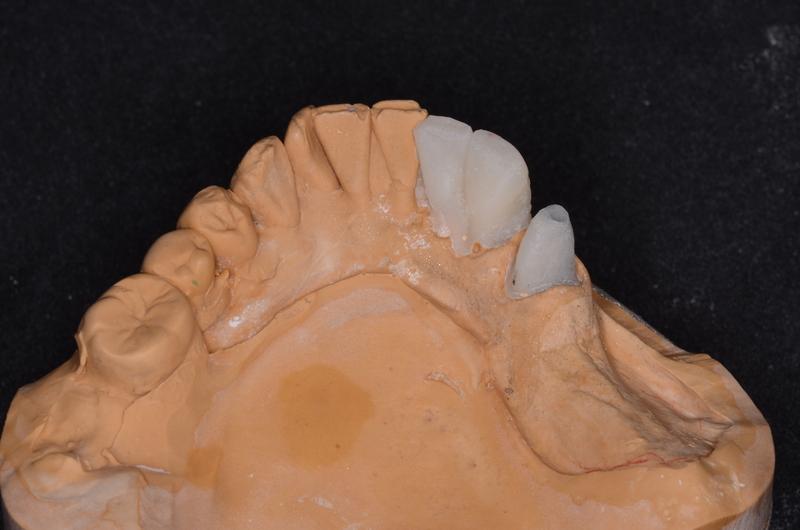 取り込み印象後の義歯用模型