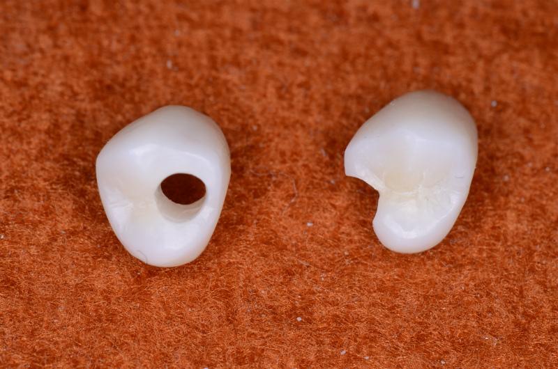 カスタム人工歯(アクセスホール有り)