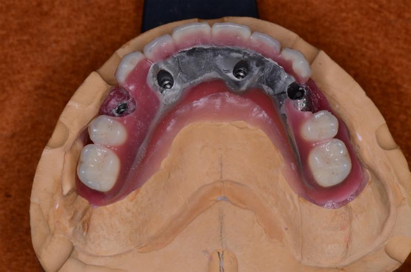 人工歯排列とアクセスホール4⏊4