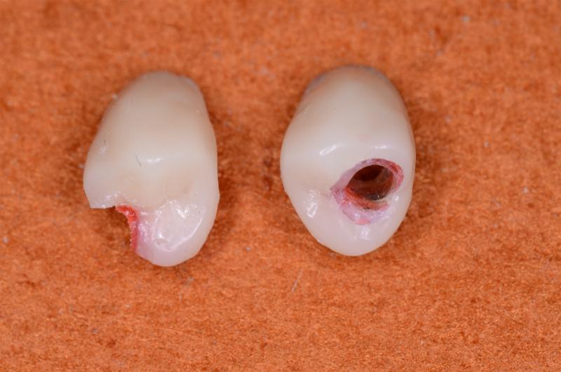 原型ー人工歯アクセスホールあり