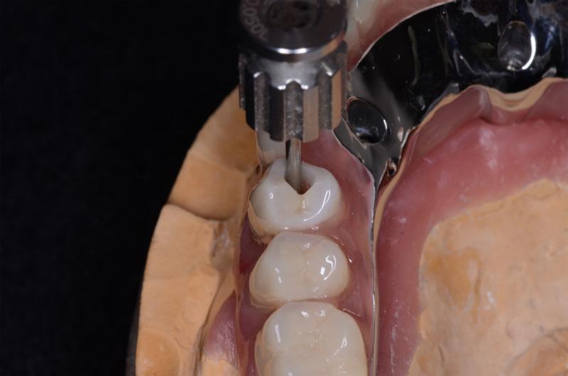 ジルコニア人工歯4⏊