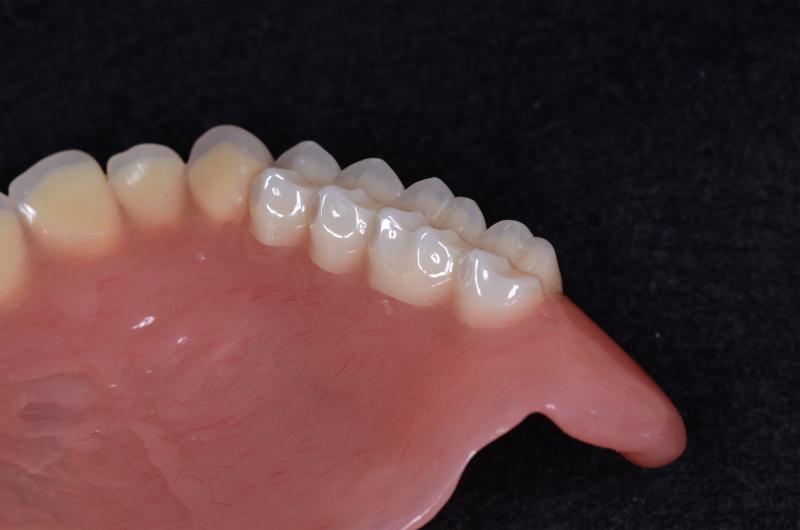 義歯に組み込まれたブレード