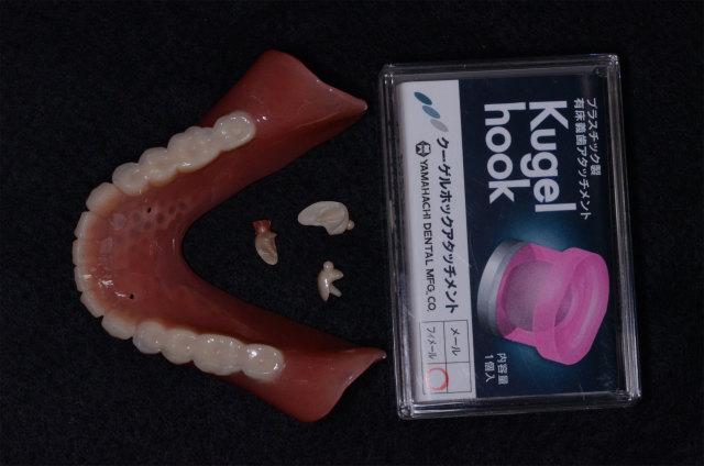 山八歯材工業のクーゲルホック