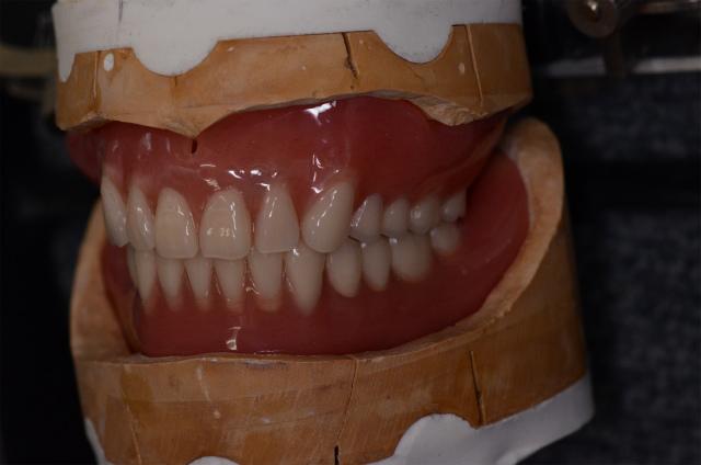 完成義歯1