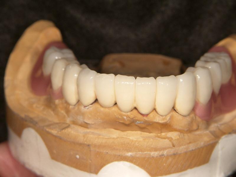 ハイブリット前装冠、人工歯排列完成