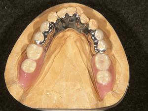 コンビネーションミリング義歯(リンガルクラスプ)