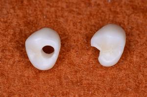 ジルコニア カスタム人工歯