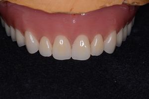 ジルコニアブレード義歯
